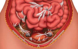 Вопрос №11 – В чем опасность спаечной непроходимости кишечника?
