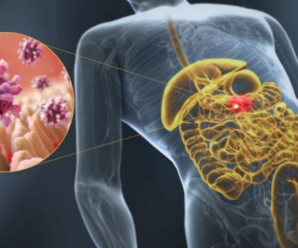 Симптомы, диагностика и лечение ротавирусного гастроэнтерита