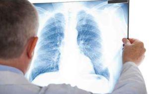Формирование рентгеновского излучения в рентгеновских аппаратах