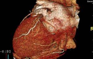 Противовоспалительная терапия может предотвратить сердечные заболевания у пожилых людей.