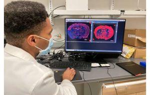 """Новая технология """"переобучает"""" клетки для восстановления поврежденной мозговой ткани у мышей после инсульта"""
