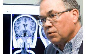 Инструмент на основе искусственного интеллекта обнаруживает биполярное расстройство на более ранних стадиях