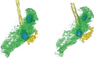 ПЭТ и КТ позволяют получить четкое изображение легких с активным туберкулезом и являются лучшими инструментами оценки, чем тесты мокроты.