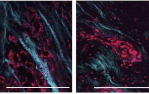 Терапевтическая резистентность, связанная с более мягкой тканевой средой при раке груди