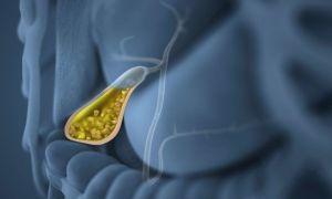 Симптомы и лечение желчнокаменной болезни