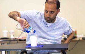 Чрескожная стимуляция улучшает функцию рук у людей с полной тетраплегией