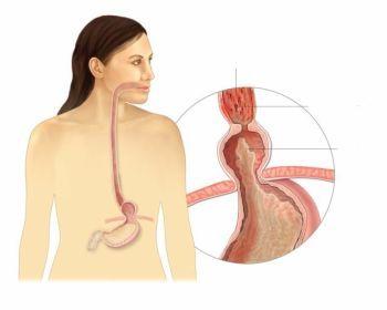 Причины и методы лечения грыжи пищевода
