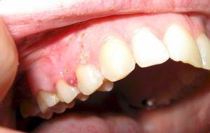 Лечение и удаление кисты зуба