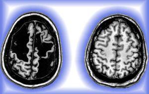 Мозг восстанавливается после травмы «на грани того, что совместимо с жизнью»