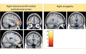 Приводит ли «суровое воспитание» к уменьшению мозга?