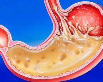 Симптомы повышенной кислотности в желудке