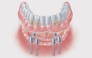 Различия между зубным протезом и зубным имплантатом