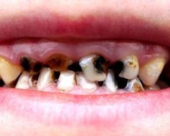 Что вызывает черный налет на зубах?