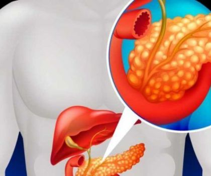 Причины появления и способы лечения панкреатита
