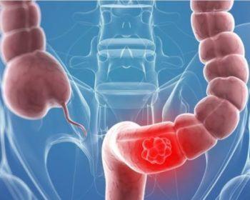 Симптоматика дискинезии толстого кишечника