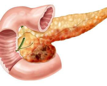 Проявления хронического панкреатита