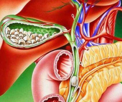 Лечение желчнокаменной болезни без оперативного вмешательства