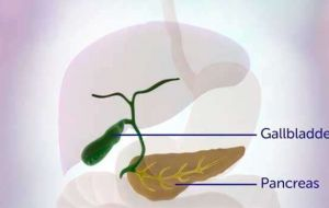 Лечение пациентов с распространенным раком желчных путей: изменение тактики