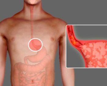 Причины и способы лечения недостаточности кардии желудка