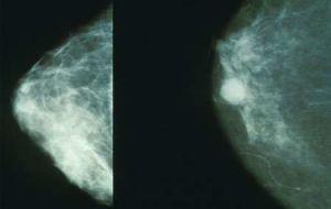 Исследователи выяснили, как наиболее распространенный рак груди становится устойчивым к лечению.