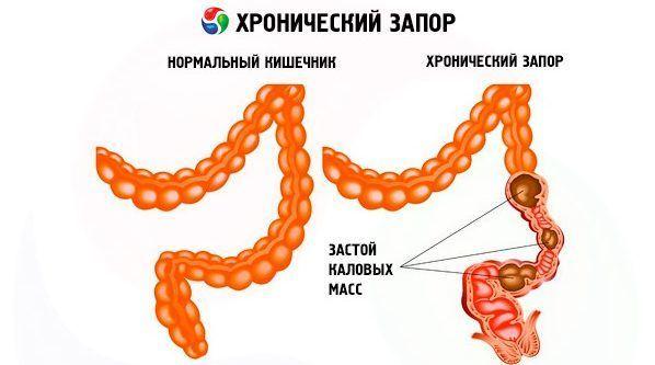 Хронический запор, патогенез