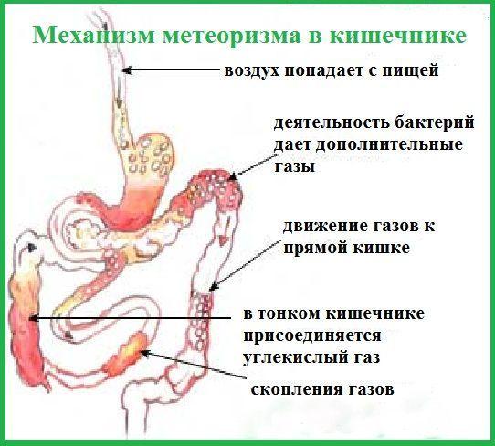 Причины вздутия живота