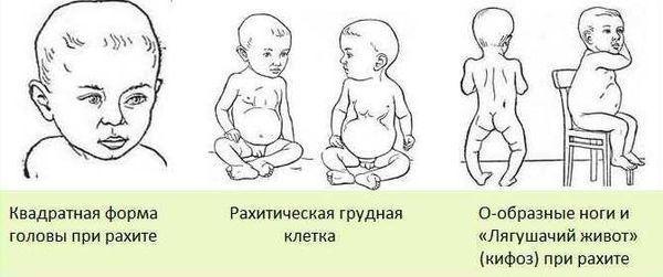 Признаки рахита у детей