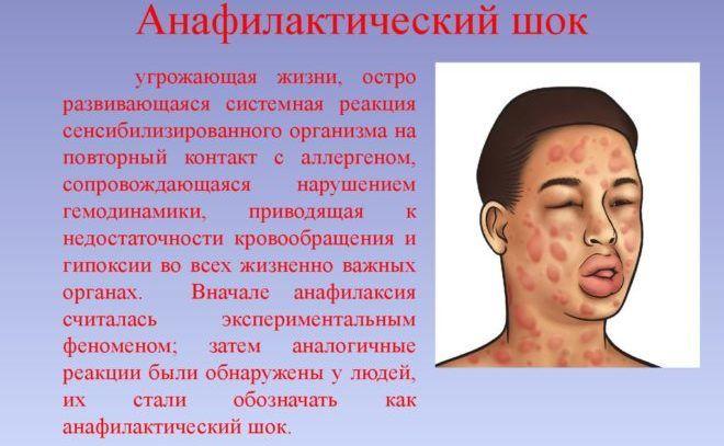 Анафилактический шок может быть как побочный эффект препарата