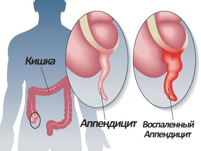 Аппендицит может стать причиной тошноты
