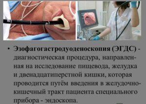 Ээзофагогастродуоденоскопия