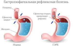 Гастроэзофагиальный рефлюкс