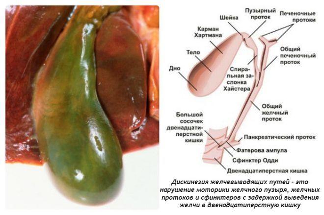 Холецистит хорошо поддается лечению расторопшей