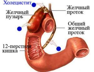 Холецистит как одна из причин появления отрыжки