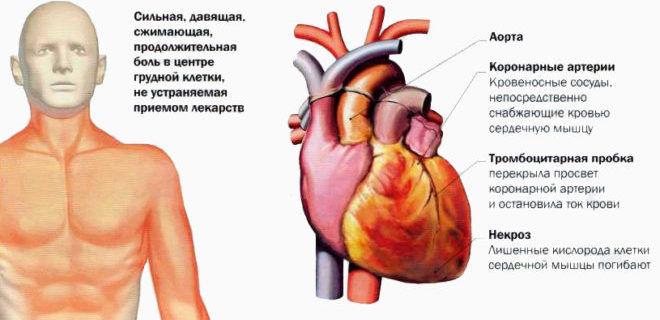 Как проявляется инфаркт миокарда