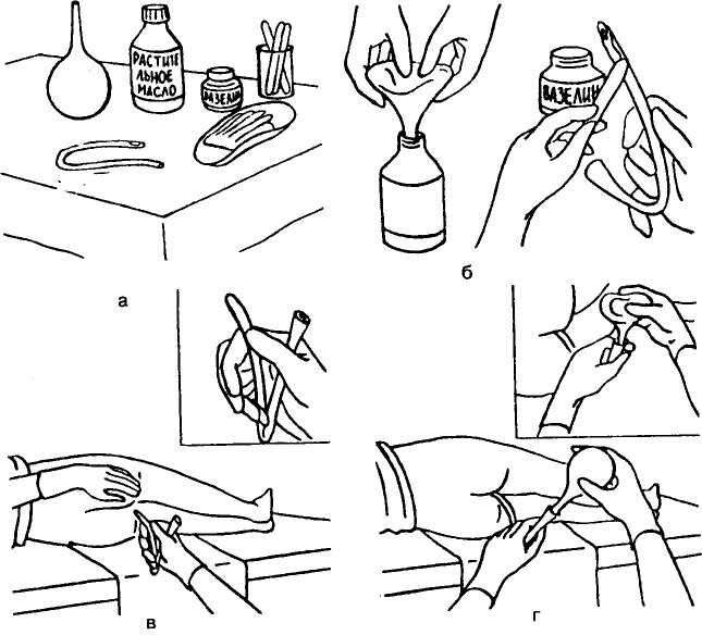 Как сделать манипуляцию клизмой в домашних условиях