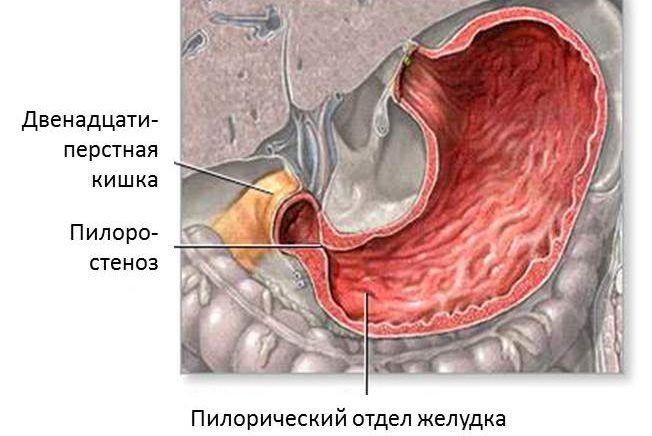 Пилоростеноз