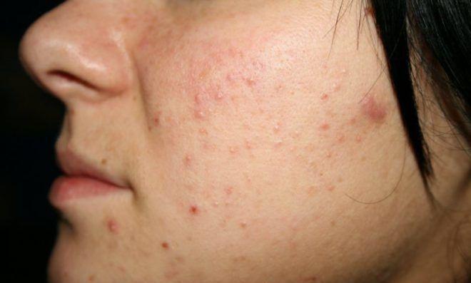 Препарат Гевиксон может вызвать побочные эффекты такие как высыпание на коже