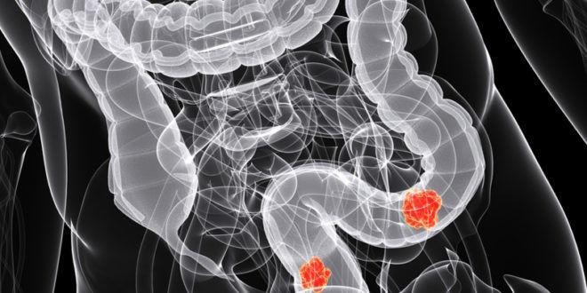 При данном исследовании кишечника можно обнаружить язвочки
