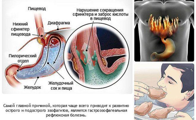 Признаки эзофагита