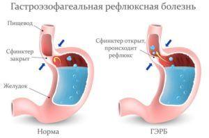 Процесс протекания гатроэзофагального рефлюкса