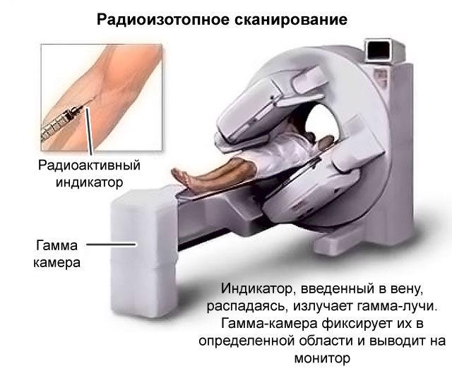 Радиоизотопное сканирование кишечника