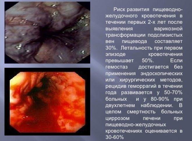 Риск развития кровотечения из пищевода