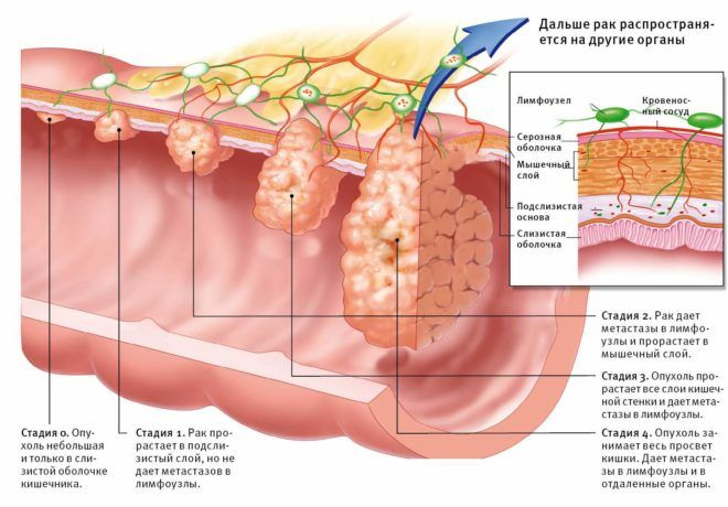 Стадии рака прямой кишки