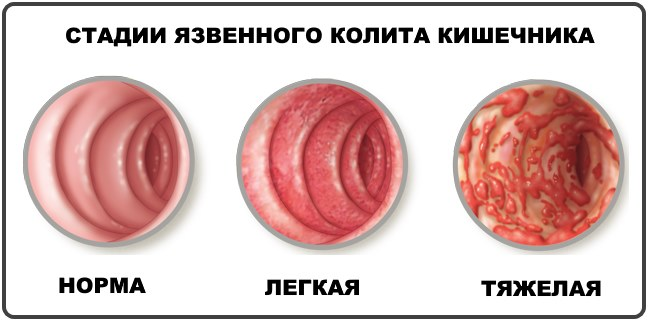 Язвенный сигмоидит