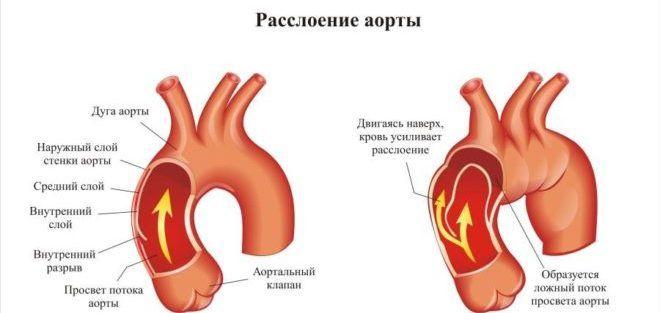 Расслоение аневризмы аорты