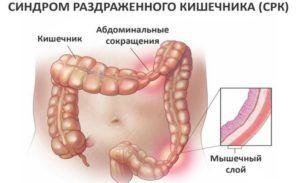 Схема синдрома раздраженного кишечника