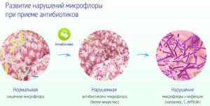 Дисбаланс кишечной микрофлоры