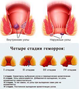 Гепатромбин применяет для лечения панкреатита