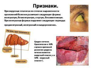 Частая изжога возникает при гепатите