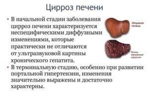 При циррозе печени запрещено использовать Гепариновую мазь